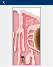 Illustration of the results of balloon sinuplasty in San Diego