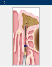Illustration of balloon sinuplasty from Rancho ENT in San Diego